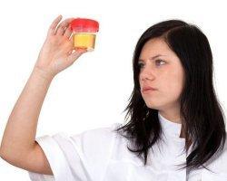 Что значит реакция на кровь в моче положительная или слабоположительная - анализ