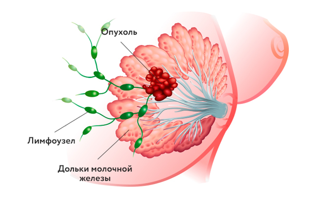 Рак Педжета молочной железы: симптомы и признаки