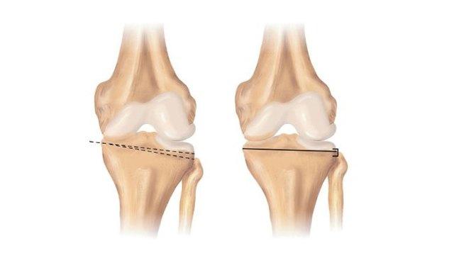 Остеотомия бедренной кости: виды, показания, проведение операции и реабилитация