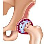 Артроз тазобедренного сустава: причины, симптомы и лечение