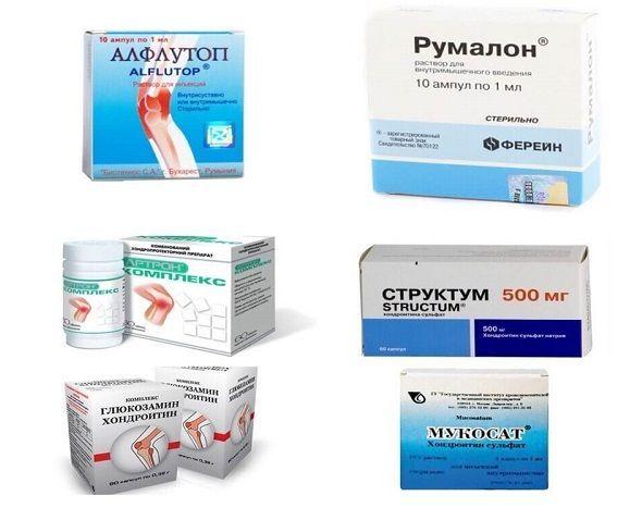 Лечение коксартроза: методы терапии и выбор в зависимости от стадии заболевания