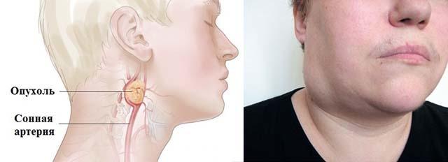Шишка на ключице ближе к горлу или плечу - что это может быть