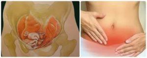 Вибрация внизу живота у небеременных женщин: причины, диагностика и лечение