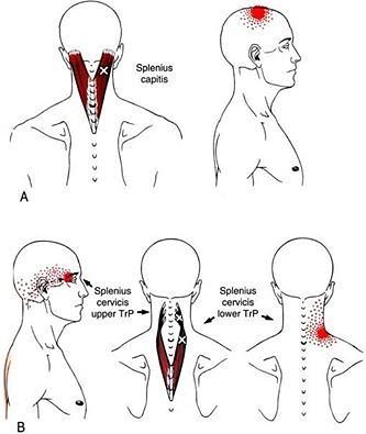 Ременная мышца головы и шеи: функции