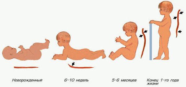 Лордоз у детей: виды, причины и лечение