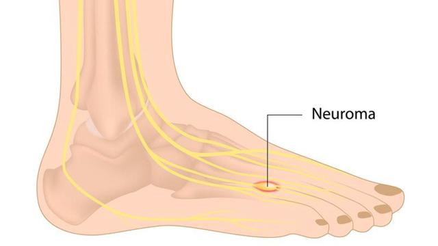 Неврома Мортона: симптомы и лечение