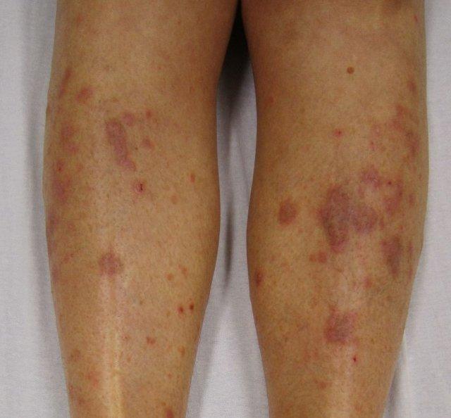 Красные пятна на бедрах у мужчин и женщин: почему появились, лечение и фото покраснения