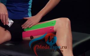 Тейпирование бедра: показания, методика наложения на переднюю и внутреннюю поверхность