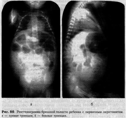Перитонит у детей: причины, симптомы, лечение и прогноз