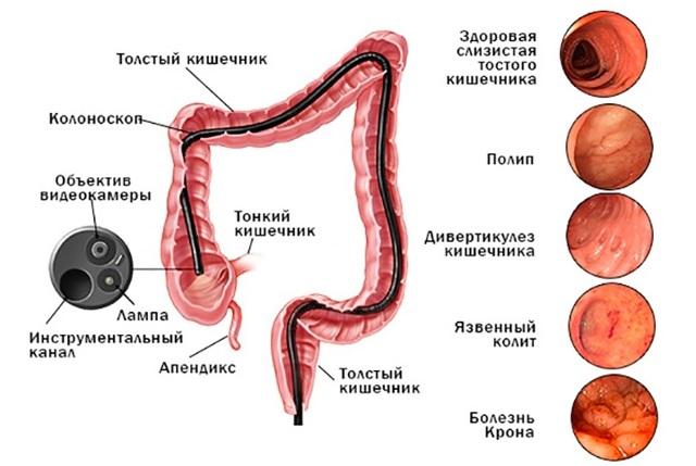 Колит при беременности: причины, диагностика и методы лечения
