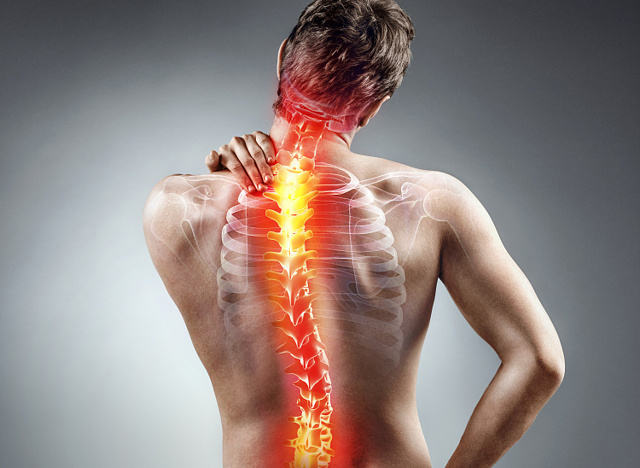 Что такое дорсалгия: вертеброгенная цервикалгия, люмбалгия, торакалгия