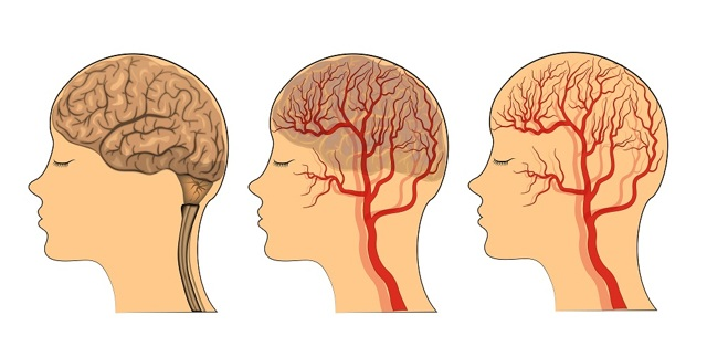 Сосуды головы и шеи: симптомы и лечение заболеваний, какой врач лечит сосуды, лекарства для чистки и укрепления сосудов, полезные продукты