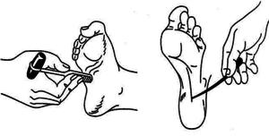 Симптом (рефлекс) Бабинского и его виды