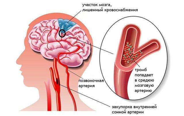Позвоночная артерия: анатомия, сегменты и ветви, норма диаметра у взрослых