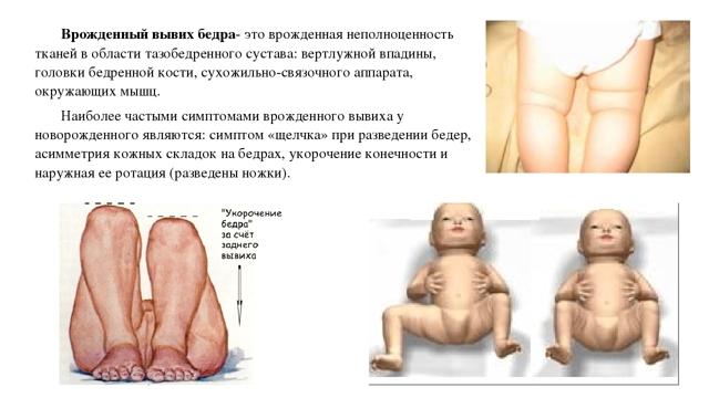 Вывих бедра у взрослых: классификация, симптомы, лечение и прогноз