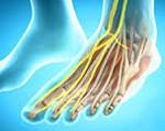 Нейропатия малоберцового нерва: симптомы и лечение