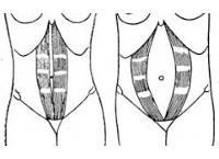 Растяжение брюшных мышц: код по МКБ-10, степени, симптомы и лечение