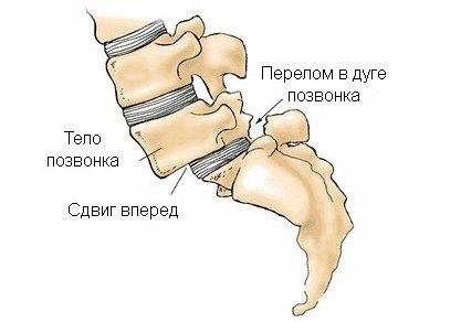 Что такое спондилолистез позвоночника: антеспондилолистез, псевдоспондилолистез, латеролистез
