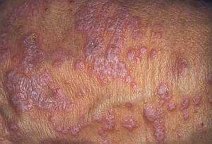 Лишай на спине: отрубевидный, розовый, разноцветный, опоясывающий – лечение и возможные осложнения