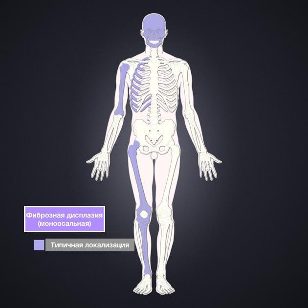 Фиброзная остеодисплазия большеберцовой кости: причины, симптомы, лечение и прогноз