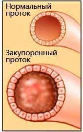Причины выделений из грудных желез при надавливании перед месячными