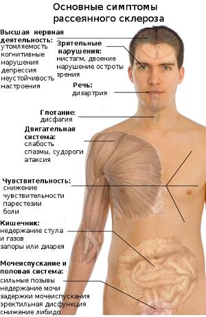 Рассеянный склероз, его симптомы и причины возникновения