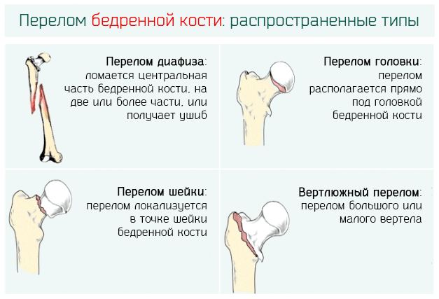 Метафиз бедренной кости: анатомия и клиническое значение