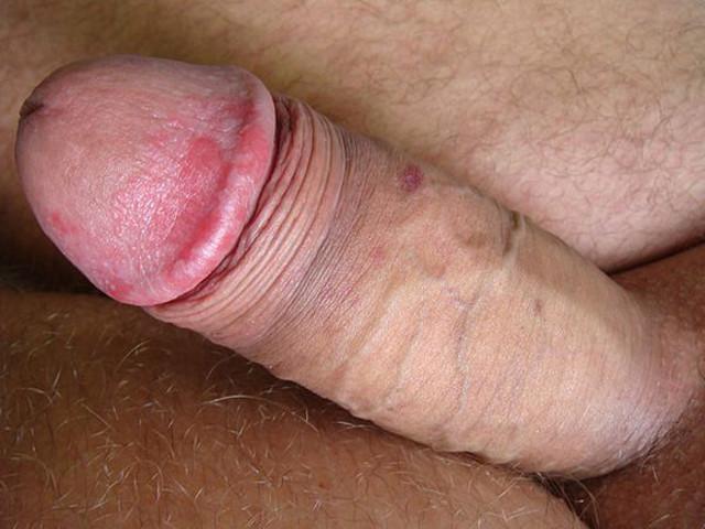 Эрозия полового члена и крайней плоти головки у мужчин: причины, симптомы и лечение