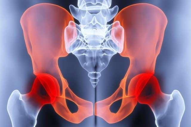 Остеохондроз бедра: стадии, симптомы, лечение и профилактика