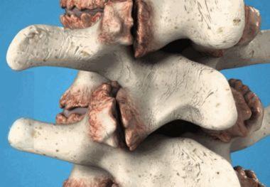 Остеофиты шейного отдела позвоночника: лечение костных разрастаний в шейном отделе