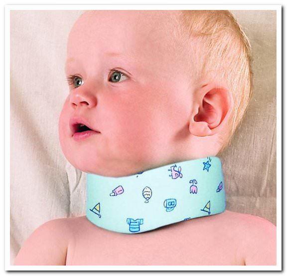 Смещение шейных позвонков у ребенка: последствия, симптомы и лечение синдрома лестницы шейного отдела у грудничка