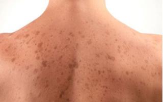 Почему появляются коричневые пигментные пятна на грудине у женщин и как от них избавиться