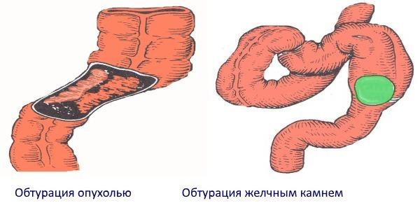 Кишечная непроходимость: причина, симптомы, стадии, диагностика кишечника и методы лечения