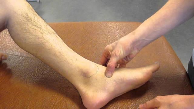 Двойной перелом лодыжки со смещением: операция, первая помощь и консервативное лечение