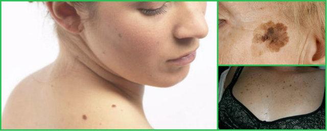 Пятна на шее: белые, пигментные, коричневые, родимые, темные, розовые, черные