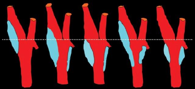 Сосуды шеи и головы: анатомия, схема кровоснабжения, топография брахиоцефальных, шейных и магистральных сосудов