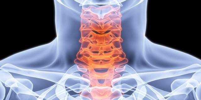 Радикулопатия шейного отдела позвоночника: симптомы шейного радикулита, код по МКБ-10, причины поражения межпозвоночного диска с радикулопатией