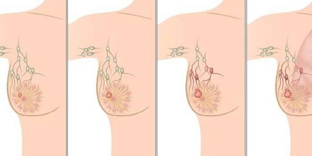 Рак грудины: симптомы и первые признаки