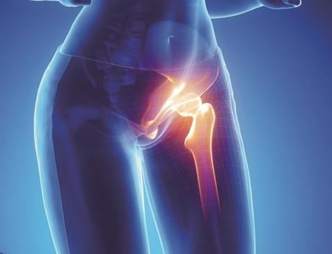 Киста бедренной кости у взрослых и детей: причины, симптомы, лечение и прогноз