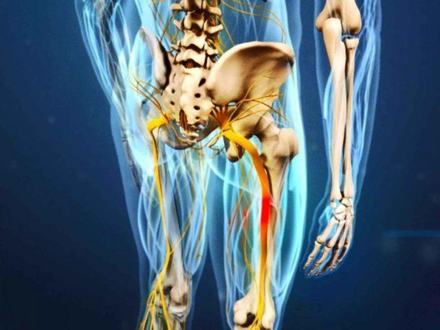 Невралгия бедренного нерва:, симптомы, методы лечения и профилактика