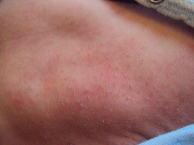 Щетина у новорожденных на спине: почему появляется и как ее убрать