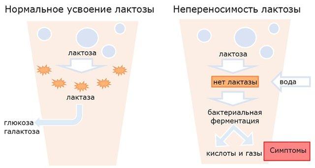 Аллергия на лактозу: симптомы у детей и взрослых