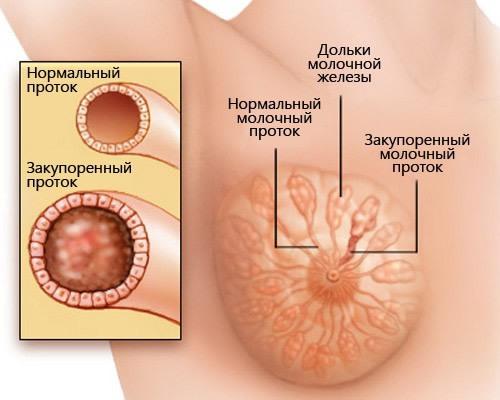 Причины выделений белого цвета из грудных желез при надавливании у женщин
