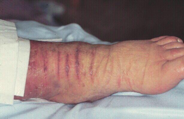 Опухоль на бедре у взрослых и детей: возможные причины, симптомы, лечение и фото