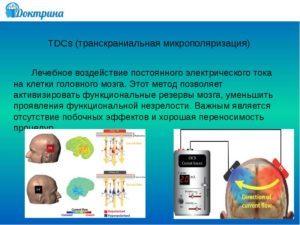 Лечение спинного мозга: методика эпидуральной электростимуляции и трансвертебральной микрополяризации
