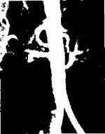 Операция при аневризме брюшной аорты: послеоперационный период, стоимость и отзывы