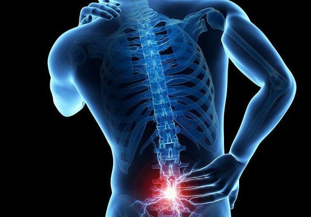 Что делать, если продуло спину, и чем лечить миозит: медикаментозные и народные средства