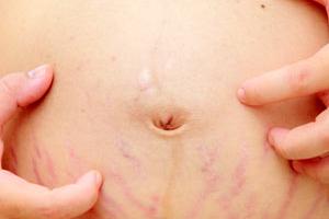 Зуд в области пупка при беременности: причины, диагностика и лечение