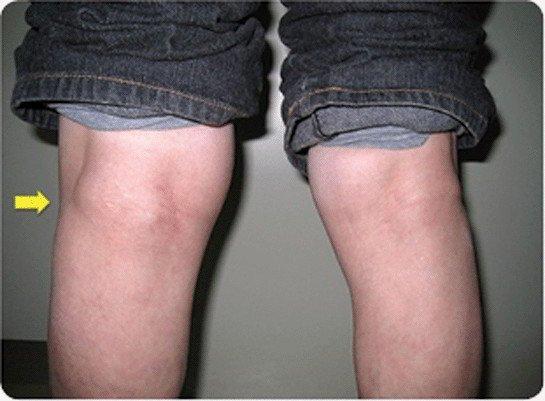 Аневризма бедренной артерии: симптомы, диагностика, лечение, прогноз и фото