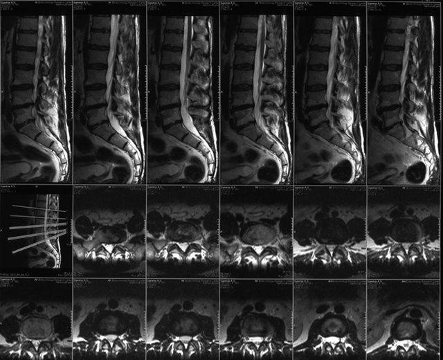 Что такое МСКТ позвоночника и чем диагностика отличается от МРТ